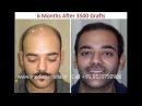 Economical Hair Transplant in India by Drneet Soni at MEDISPA Jaipur Delhi India UAE