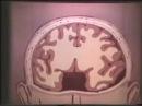 Декомпрессионная трепанация черепа по Кушингу © Decompression craniotomy for Cushing
