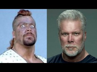 Kevin Nash | Transformation 2017 | From 18 To 58 Years Old