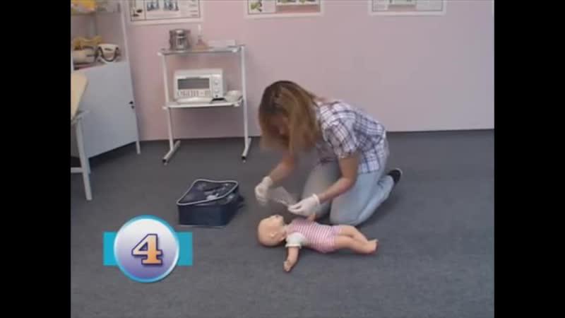 Проведение сердечно лёгочной реанимаци у новорождённых