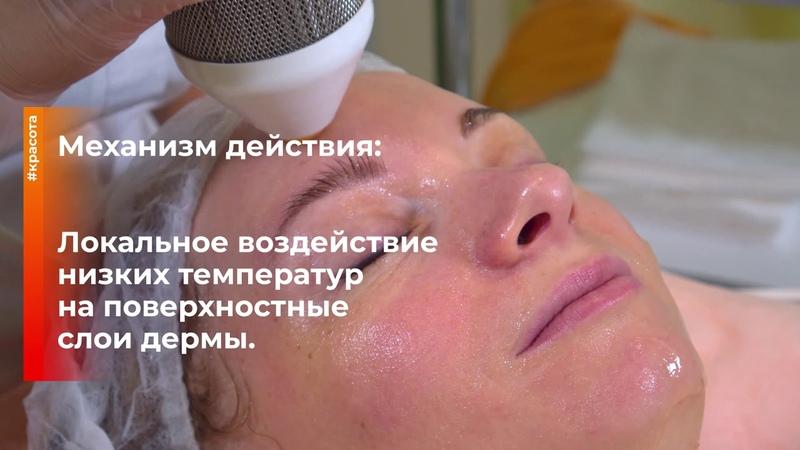 Процедура криолифт Косметолог эстетист Козинцева Елена