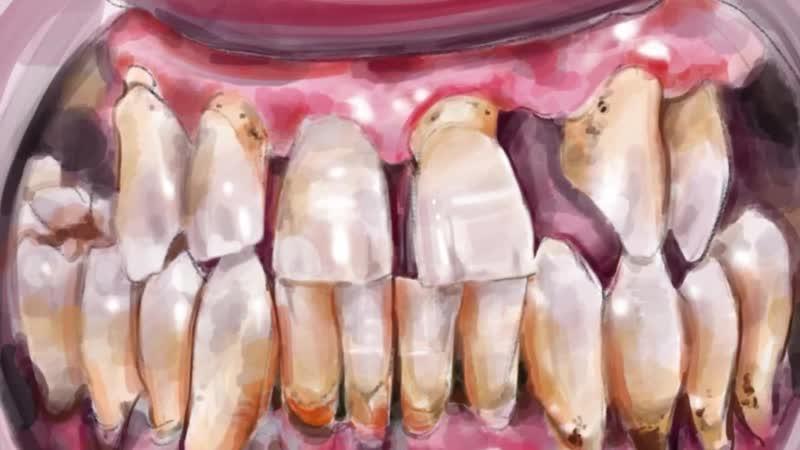Влад Бахов. А были ли зубы Возможно ли их отсутствие ВладБахов ДелоВладаБахов