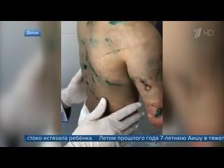 В Ингушетии к шести годам колонии суд приговорил женщину, которая жестоко истязала ребенка