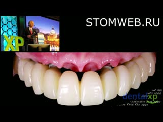 A Complete 3D Strategy to Esthetic Cross Arch Restorations Guide Surgery  Soft Tissue Interface Management with CAD-CAM